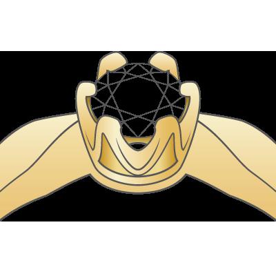 złoto żółte pr. 585